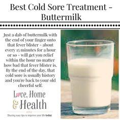 Best Cold Sore Treatment - Buttermilk