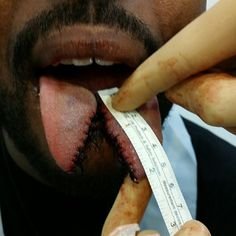 Easily longest tongue split I've done. 2 inches and 25 stitches.  #anetavoncyborg #art #artist #bme #bodymodification #bodymods #bodyart #bodmod #bestoftheday #bodymod #bmezine #bodmods #cool #followme #instagram #picoftheday #piercing #sutures #scalpel #septum #stitches #sutureporn #samppavoncyborg #suture #tonguesplitting #tonguesplit #tongue