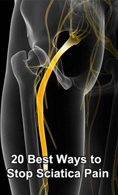 20 Best Ways to Stop Sciatica Pain #Sciatica_Pain