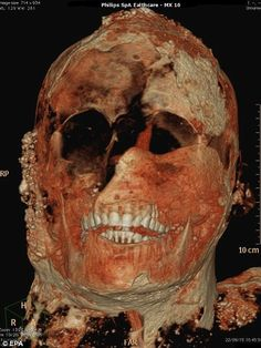 Other scans attempt to bring the skull of another victim to life using a specific contrast dye that mimics the appearance of muscles and skin