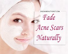 GET RID OF THE SCAR Clear the scars that are left by acne as well as brighten the skin with natural home remedies for a...