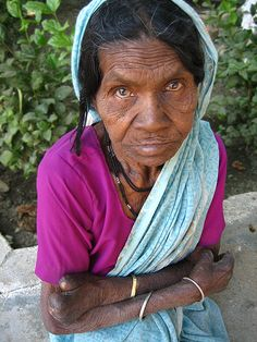 This old Nepalese leper woman has been abandoned by everyone.  http://www.sethbarnes.com/?filename=who-will-help-her