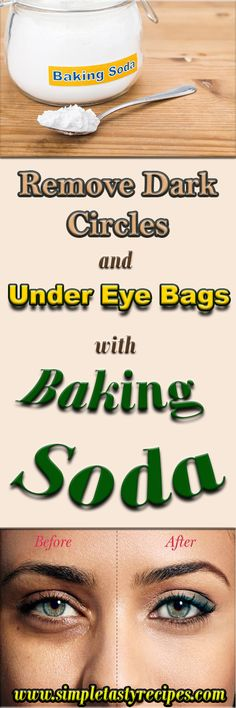 Baking soda for bags under eyes