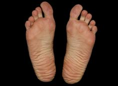 "Chinese and Indian cultures studied foot reading for over 5,000 years. In their tradition feet are considered to be the"" mirror"" of the body. That is why it is believed that any lumps, calluses or pain in the feet signalize a health problem in the body. For instance, a fallen arch means that you may …"