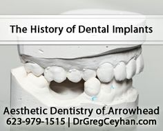 Dental implants have been attempted since ancient times. The Etruscans, an Italian civilization that existed around 700 B.C. used gold bands...