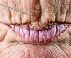 1 Simple Trick Removes Lip Lines & Eye Bags In Seconds