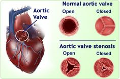One of Fletcher's conditions. Aortic Valve Stenosis - essentially blood is unable to flow freely from the left ventricle to the aorta.