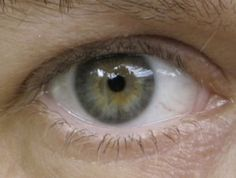 Soft Summer eye 3