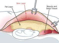The Ulthera works at three separate levels, the upper dermis, lower dermis and the SMAS/ Platisma. The area where the facial muscles are connected to the dermis is refered to as the (SMAS). This superficial muscle is something that would be addressed by a facial plastic surgeon during a facelift