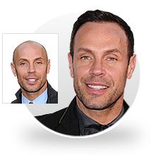 Jason Gardiner - Before and After picture Hair Transplant Surgery, Hair Loss Women, Hair Restoration, Celebrity Hairstyles, Hair Removal, How To Remove, Medical, Celebrities, Celebrity