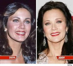 celebrities Lynda Carter Plastic Surgery Before And After Photos Bad Plastic Surgeries, Plastic Surgery Photos, Celebrity Plastic Surgery, Linda Carter, Celebrities Before And After, Celebrities Then And Now, Wonder Woman, Bionic Woman, Old Movie Stars
