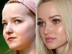 Dove Cameron in 2008 (left) and in 2017 (right). Dove Cameron, Cameron Hair, Botox Fillers, Lip Fillers, Celebrity Beauty, Celebrity Dads, Cleft Chin, Nose Surgery, Baby Fat