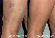 CTEV Vein Removal   Leg & Face Veins   Sclerotherapy San Diego