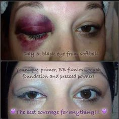 Can your make up do this?? Youniques makeup is so amazing it covered this woman's black eye from a softball!! AMAZING! Get it here!  www.youniqueproducts.com/RachelleRowe