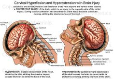 Cervical Hyperflexion and Hyperextension with Brain Injury