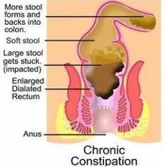 Diet To Treat Constipation - Best Foods To Relieve Constipation | Ayurvedic Natural Cure Supplements