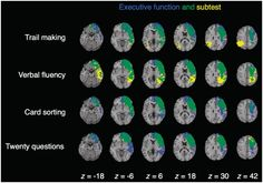 Voxel-based lesion–symptom mapping of executive functions.