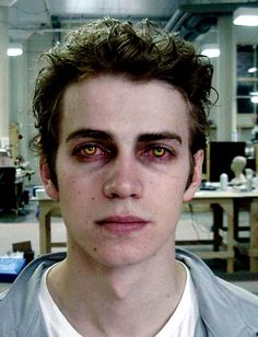 Revenge of the Sith | Behind the Scenes | Hayden Christensen's post-burn contact lenses, which suggest scorched eyeballs, were crafted by Reel Eye of London, the house that also supplied Ian McDiarmid's lenses for his make-up as the Emperor in Return of the Jedi.