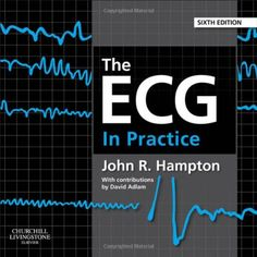 The ECG In Practice, 6e by John R. Hampton DM MA DPhil ... https://www.amazon.co.uk/dp/0702046434/ref=cm_sw_r_pi_dp_WxKgxbXJ8MDYJ