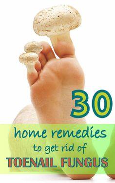 30 Natural Remedies to Get Rid of Toenail Fungus Fast. #toenail #fungus #homeremedies