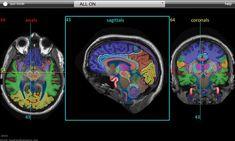 sweet neuro study tool