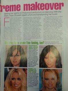 Dr. Bonanni talks about botox among celebs.