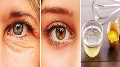 Untimely ageing around the eyelids and eyes in general is essentially based on hereditary factors - it's in your DNA. Find more information on home remedies for droopy eyelids. Home Remedies, Natural Remedies, Drooping Eyelids, Parts Of The Eye, Eyes Problems, Skin Firming, Face Skin, Wash Your Face, Cool Eyes