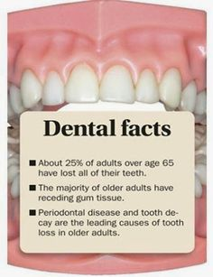 periodontal disease and tooth decay are the leading causes of tooth loss in older adults. check out other dental facts here: periodontal disease and tooth decay are the leading causes of tooth loss in older adults. Oral Health, Dental Health, Dental Care, Dental Hygienist, Dental Assistant, Teeth Health, Healthy Teeth, Health Tips, Health Care