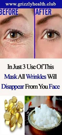 In Just 3 Use Of This Mask All Wrinkles Will Disappear From Your Face