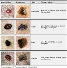 Malignant Melanoma - the mole in the skin! Skin Cancer Treatment, Skin Treatments, Face Treatment, Seborrheic Keratosis, Cancerous Moles, Diabetes, The Mole, Skin Moles, Cancer Fighting Foods