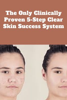 acne naturally # clear acne at home acne before wedding to clear up acne overnight acne diet acne fast acne in a week acne quickly acne remedies acne scaring Best Concealer For Acne, Acne Leather Jacket, Clear Acne Overnight, Aloe Vera Face Mask, Body Acne, Acne Cream, Before Wedding, Acne Remedies, Body Spray