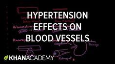 Hypertension effects on the blood vessels   Health & Medicine   Khan Aca...
