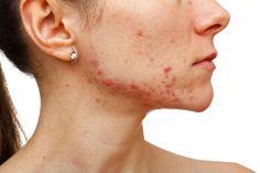 Crema casera para el acné y sus cicatrices, ¡apunta la receta!