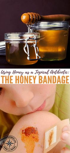 Using Honey as a Topical Antibiotic: The Honey Bandage — Honey is one of the more versatile foods you can store. You know it tastes good on toast and in your tea, but did you know honey also has healing properties?