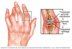 Infographic: Rheumatoid arthritis can cause pain, swelling and deformity.