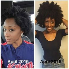 What you can use to see progress on your natural hair growth journey today. #hairgrowth journey