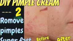 How to Remove #Pimples FAST…Check Out this video -  #WhiteningSkin #DIY #Acne #GlowingSkin #SkinCare Veblr JSuper Kaur