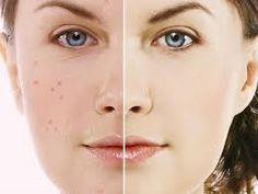 Get Clear Skin With Acne No More