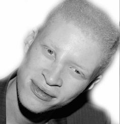 Music Festival Fashion Essentials for Summer 2019 Albino African, Shaun Ross, Hydra Facial, Music Festival Fashion, Most Beautiful People, Beauty Magazine, African Men, Fashion Essentials, Beauty Editorial