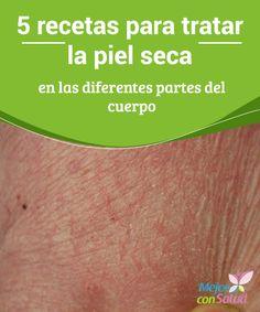 5 recetas para tratar la piel seca en las diferentes partes del cuerpo  Para cuidar de la piel seca debemos hidratarla tanto por fuera como por dentro, por lo que, además de los tratamientos que te proponemos, es fundamental que incrementes el consumo de agua