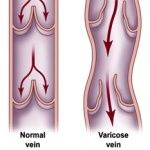 Bulging Leg Veins Causes and Remedies - http://www.healtharticles101.com/bulging-leg-veins-causes-and-remedies/#more-6258