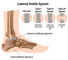 Ankle sprains are common injuries that occur when ligaments are stretched or torn. The ankle sprain is the most common athletic injury. Nearly 85% of ankle sprains occur laterally, or on the outside of the ankle joints. Some individuals, due to their bone structure or foot type, are more prone to ankle sprains.  For more information about this topic follow the link to our website.
