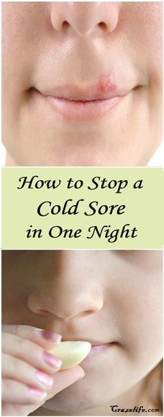 How to Stop a Cold Sore in One Night ! – Just Use This Single Ingredient !
