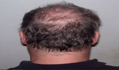 4 Symptoms of Genetic Baldness and Solution with Hair Transplantation Pcos Hair Loss, Hair Loss Pills, Dht Hair Loss, Hair Loss Women, Hair Loss In Children, Chemotherapy Hair Loss, Eyebrow Hair Loss, What Causes Hair Loss, Hair Loss Reasons