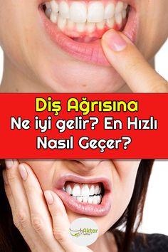 Diş ağrısına evde doğal çözümler arıyorsanız mutlaka yazımıza göz atın. #dişağrısı #dişağrısınadoğalçözüm