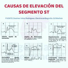 Taquicardia Ventricular, Biomedical Science, Med School, Medical Students, Physiology, Exercise, Education, Nurses, Gaining Muscle
