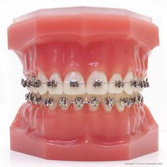The good news? With the innovative technology of the Damon System, it's easier than ever before to improve your smile in far less time, with greater comfort and with greater results and benefits that last a lifetime. Fake Braces, Braces Tips, Damon Braces, Ceramic Braces, Cute Braces Colors, Types Of Braces, Orthodontics, Diana, Teeth