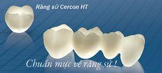 Tìm hiểu răng sứ Cercon HT giá bao nhiêu?