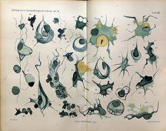 Neuro pathology of Alzheimer's Disease - Gaetano Perusini - 1910