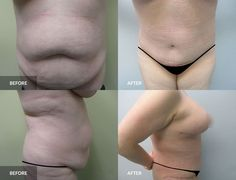 Tummy Tuck: before & after, 6 months post-op  #tummytuck #plasticsurgery #abdominoplasty Tummy Tuck Before After, Tummy Tucks, Abdominal Muscles, Plastic Surgery, 6 Months, Cosmetics, 6 Mo, Abs